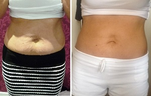 before and after cool sculpting results