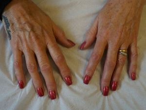hand rejuvenation fillers
