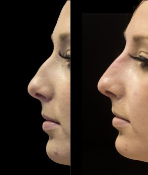 The 5 Minute Nose Job | SkinViva Manchester, Cheshire