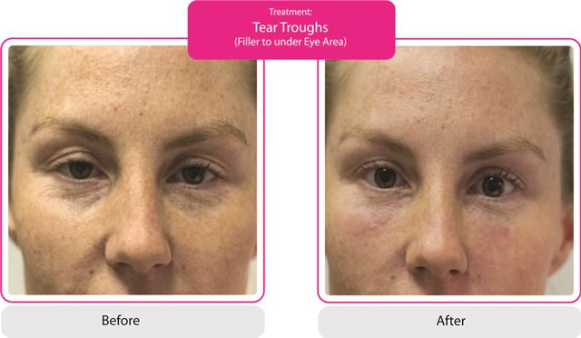 Tear Trough Treatment Fillers Skinviva Manchester Cheshire