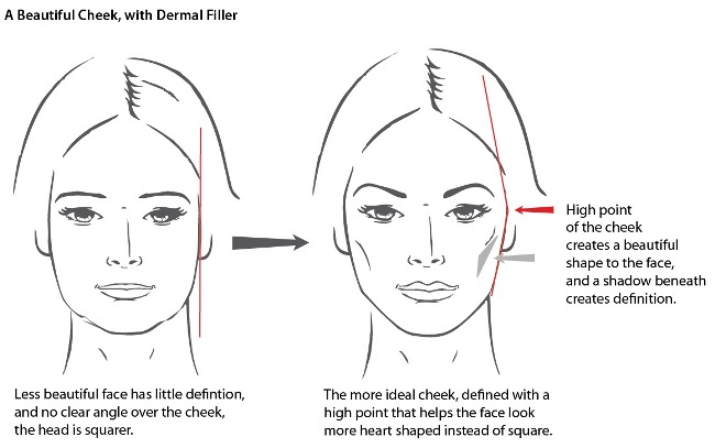 cheek dermal fillers