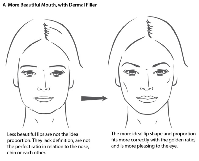 lips dermal fillers