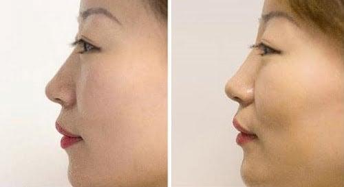 oriental nose job