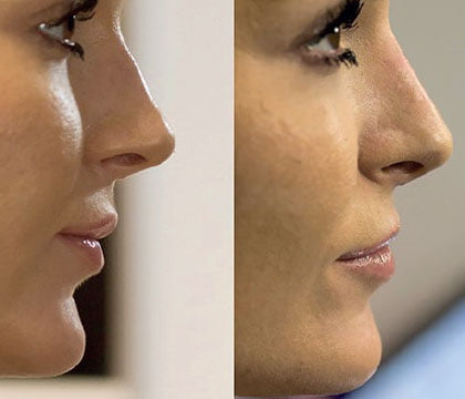 Cheek enhancement with dermal fillers