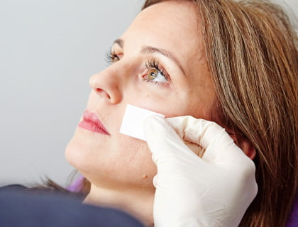 Tear trough rejuvenation with dermal filler