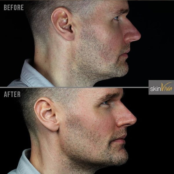 Before and After Results Gallery