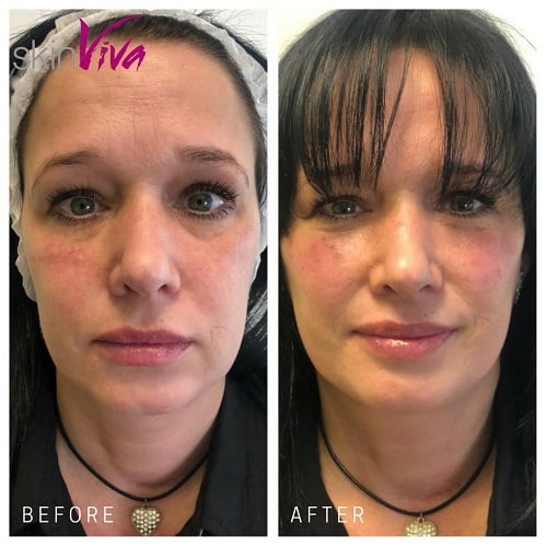 Cheek volume, filler for cheeks | SkinViva, North West