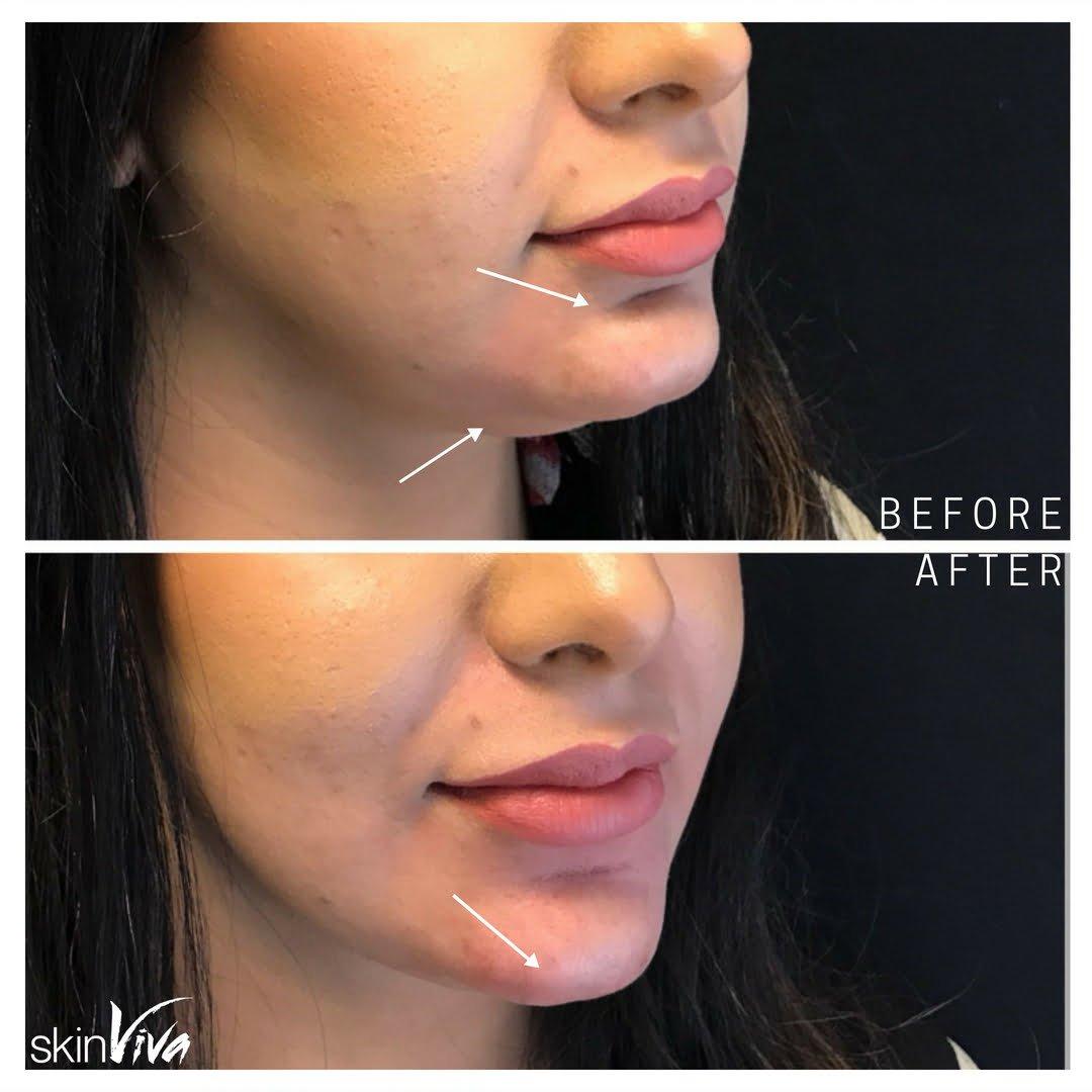 Non-Surgical Chin Augmentation Fillers | SkinViva Manchester
