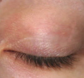 eyelash serum before