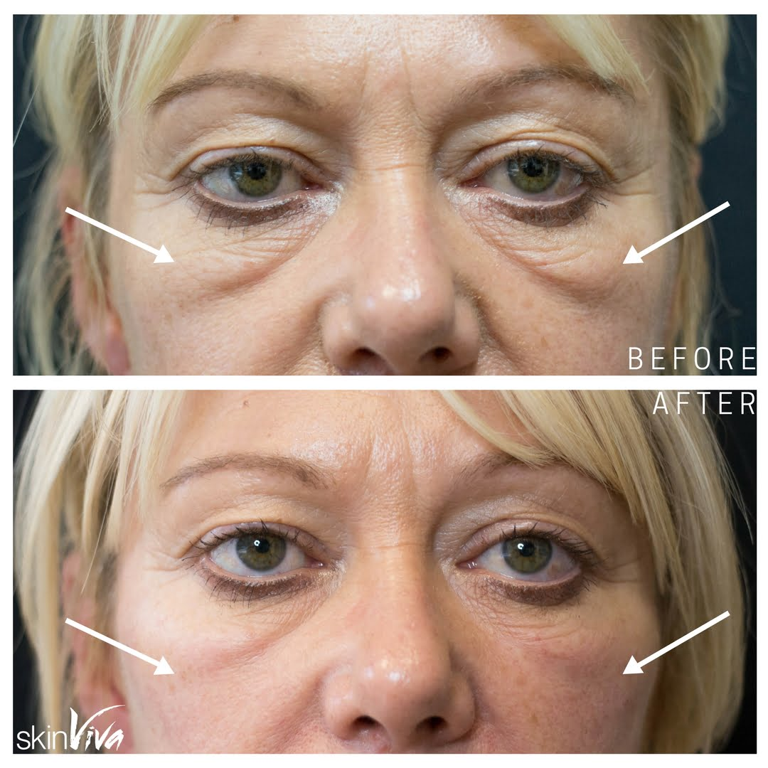 Tear Trough Treatment Fillers | SkinViva Manchester Cheshire