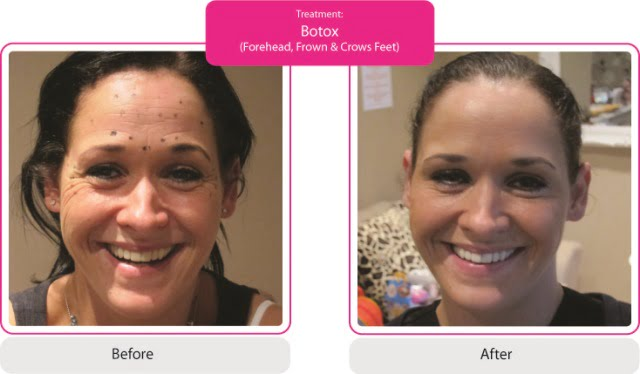 Botox Photos, Before and After Results | SkinViva Manchester