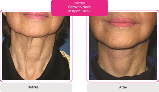 Before and After Neck (Platysmal Bands)