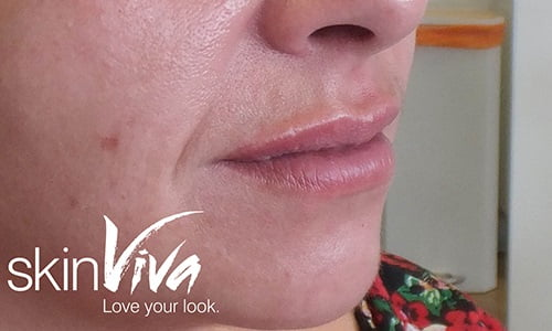 da vinci lip enhancement