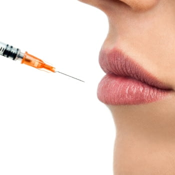More About Dermal Filler Treatment
