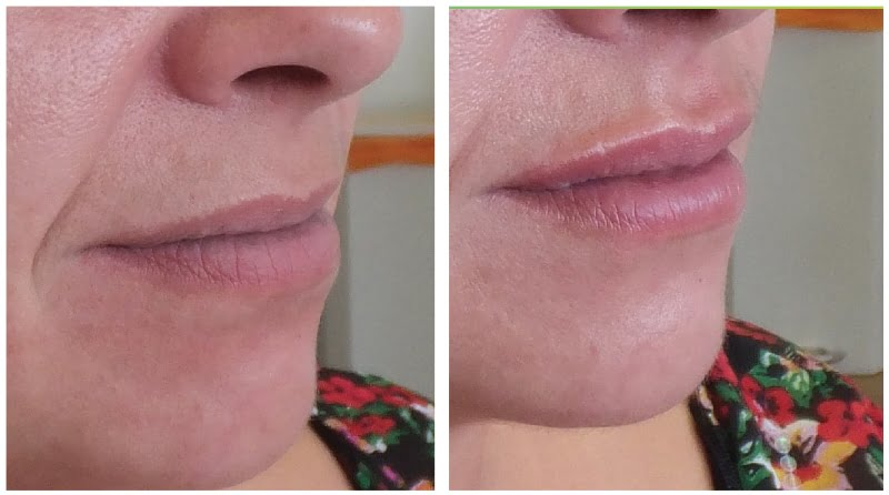 before and after da vinci lips