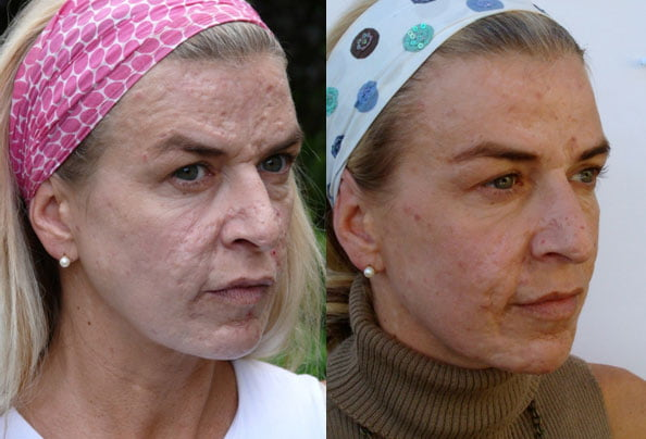 dermaroller acne results