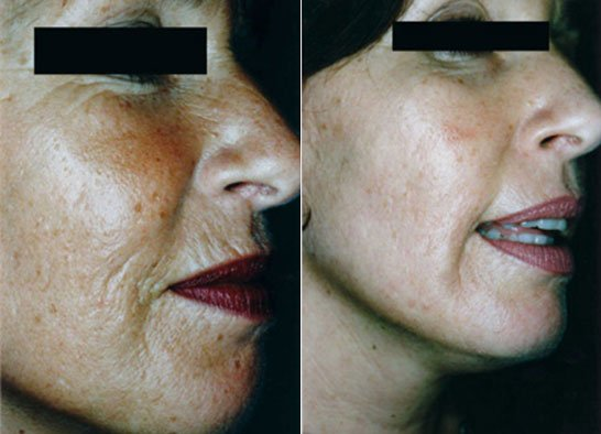 dermaroller anti ageing results