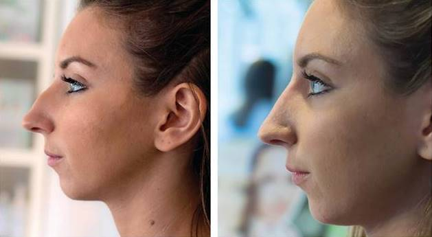 30 minute nose job