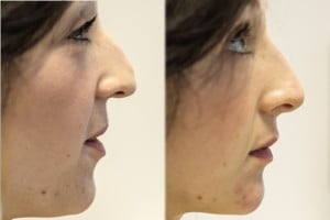 before and after nose and chin