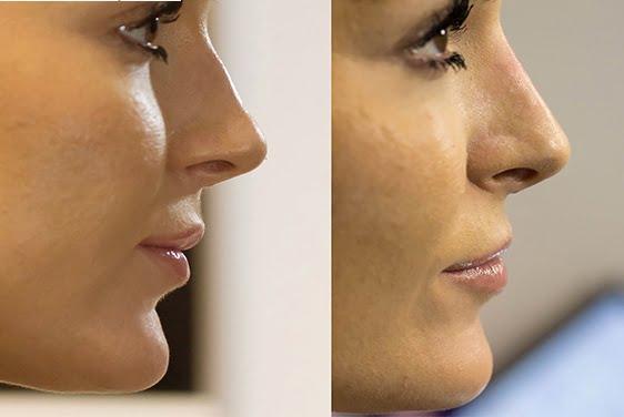 liquid nose job results