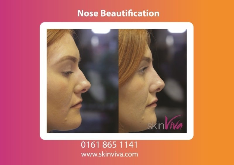 Before and After Nose job- beautification