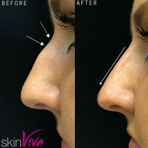 nose job before after rhinoplasty