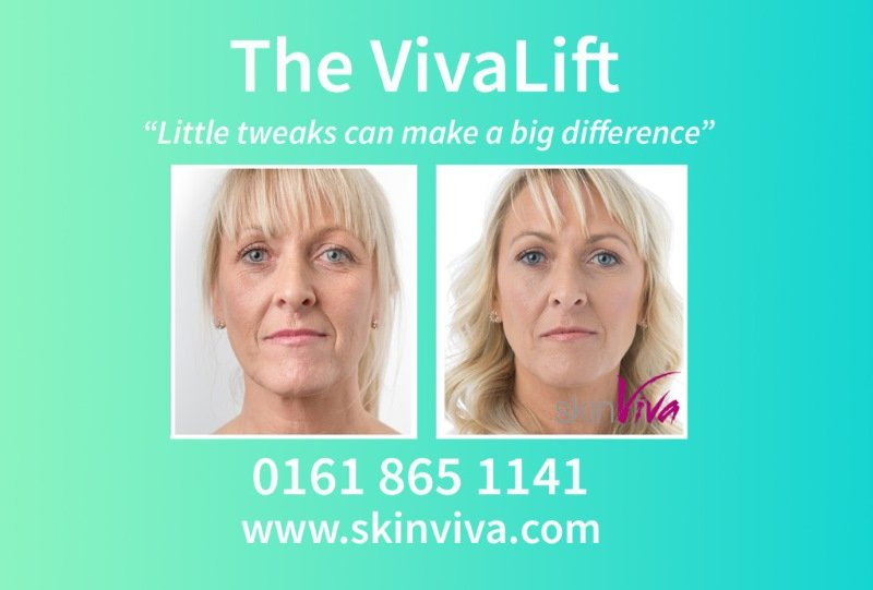 VivaLift before and after