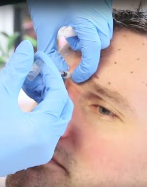 Lee's BOTOX® and Fillers Story