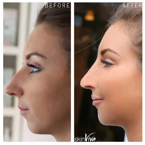 How to make your nose look shorter in pictures