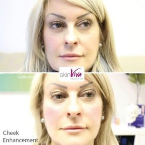before and after cheek enhancement