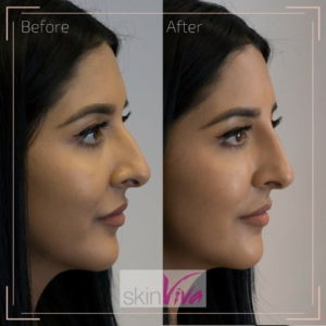 Non-surgical Rhinoplasty Treatment with Blogger | SkinViva, Manchester