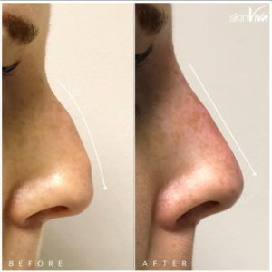 nose job before after