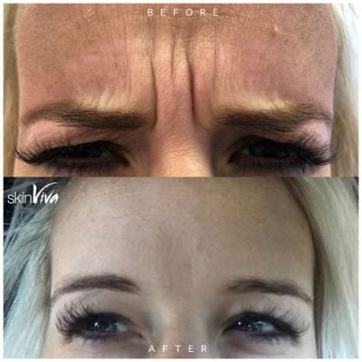 before and after botox treatment result