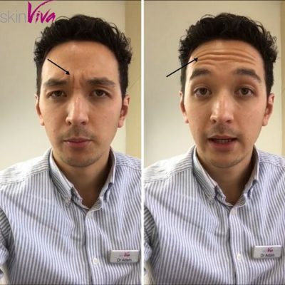 dr adam botox wrinkle injections