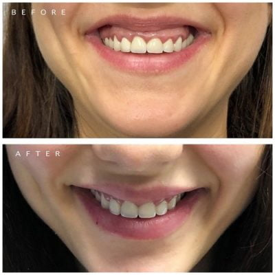 gummy smile before after