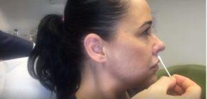 upper lip lines side profile