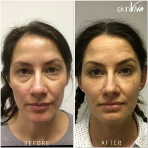before after sandra bullock client