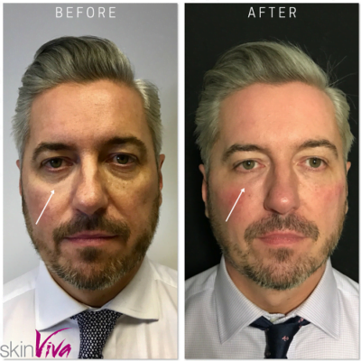 before after male treatment fillers