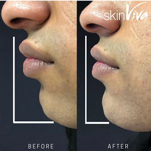 chin before and after filler