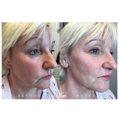 jowls before and after jawline woman