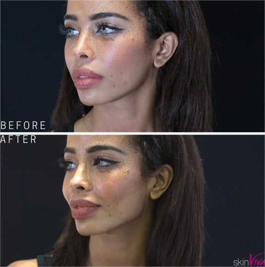 Jawline Contouring/Enhancement with Dermal Fillers | SkinViva