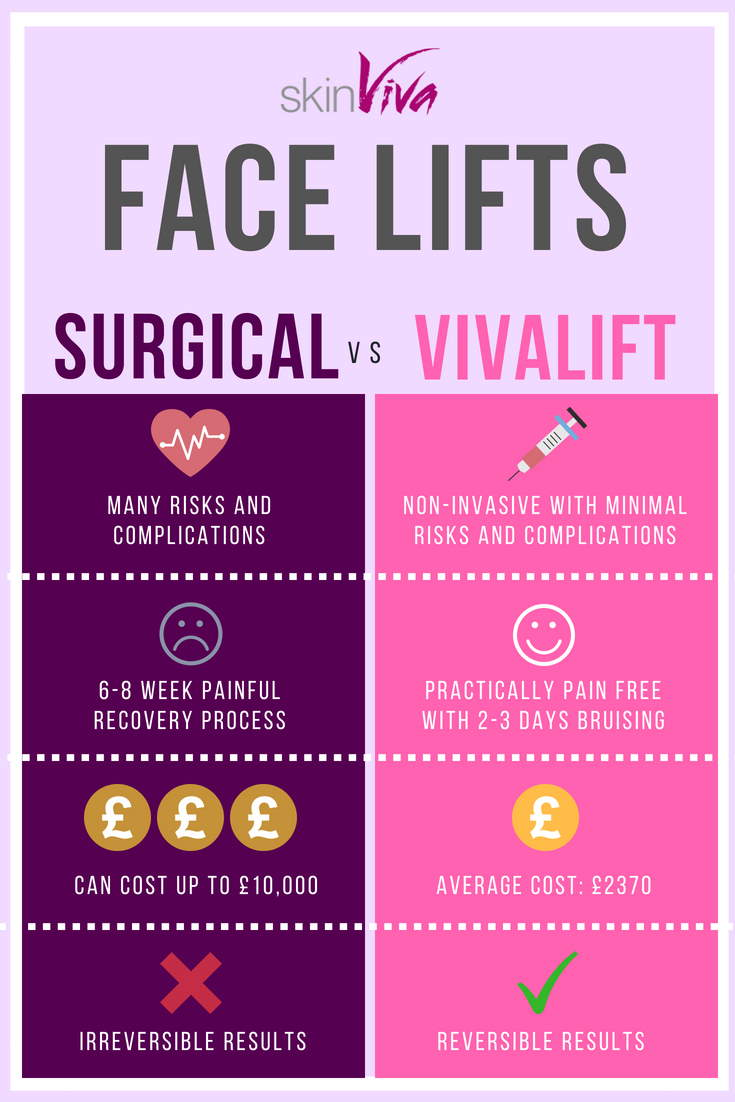 vivalift surgical face lift