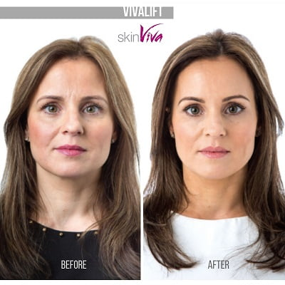vivalift (non-surgical face lift)