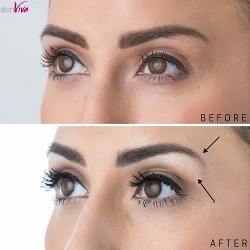 brow lift / browtox before and after