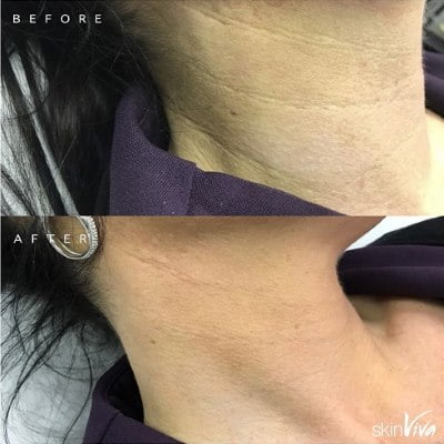 neck line treatment results