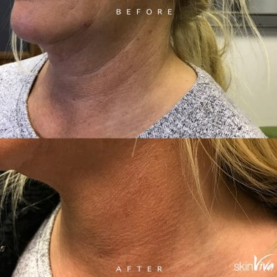 neck line treatment