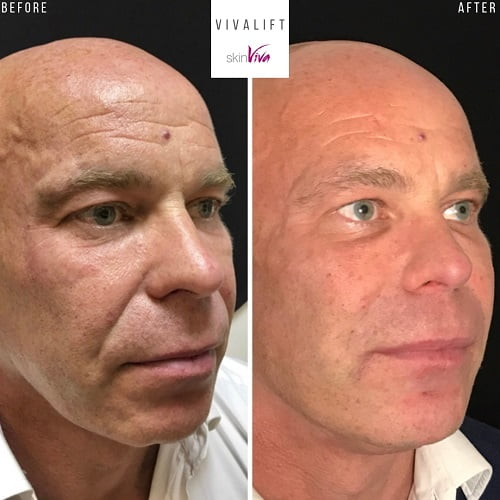 vivalift (non-surgical facelift) before and after