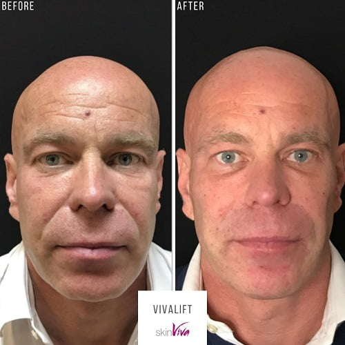 non surgical facelift (vivalift) before and after results