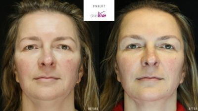 vivalift non surgical face lift