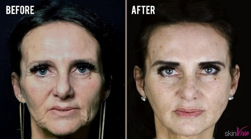 diane liquid face lift